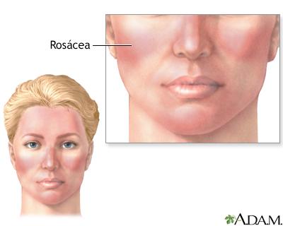 Rosácea: enfermedad de la piel