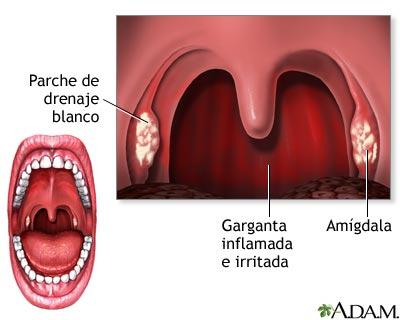 Amigdalitis: MedlinePlus enciclopedia médica