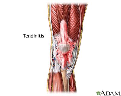 Dolor en la rodilla causado por una tendinitis