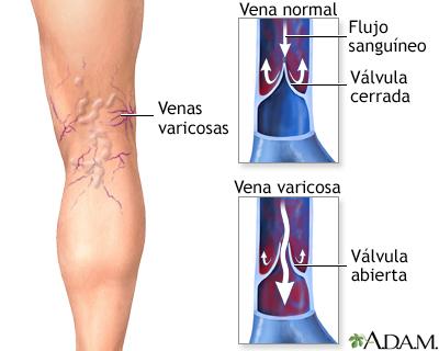 Las infracciones tróficas de la piel a varikoze el tratamiento