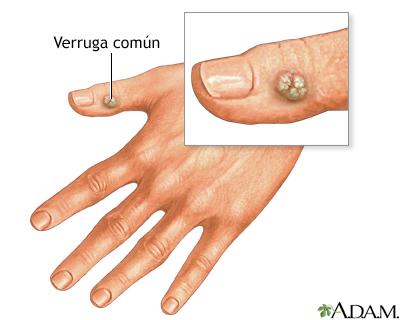 virus papiloma manos