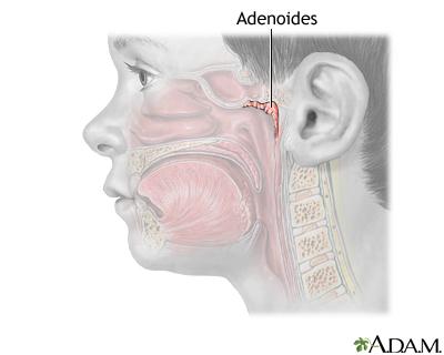 Adenoidectomía - Serie—Anatomía normal: MedlinePlus enciclopedia médica