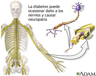 La diabetes y el daño a los nervios