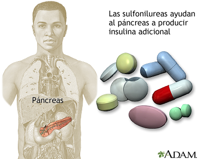 Drogas sulfonilureas