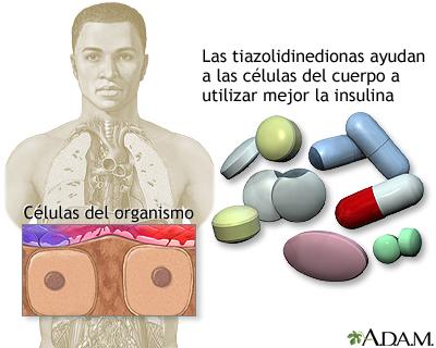 Tiazolidinedionas