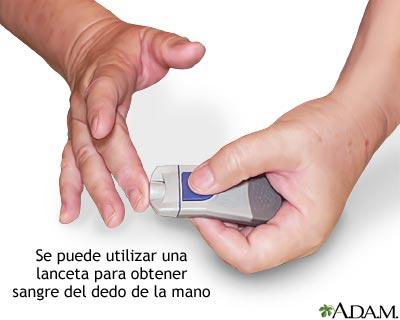 Medición del nivel de la glucosa en la sangre: Pínchese el dedo