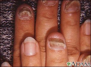 Enfermedades en uñas y manos