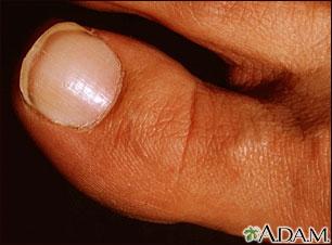 Síndrome de la uña blanca