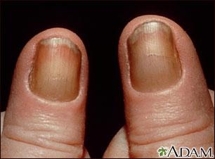 Síndrome de las uñas amarillas