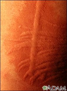 Dermatografismo - de cerca