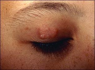 Granuloma anular en el párpado