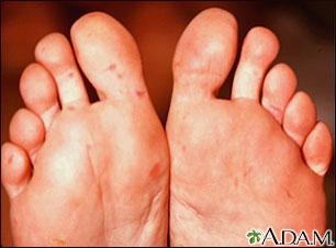 Enfermedad de boca-mano-pie en la planta de los pies