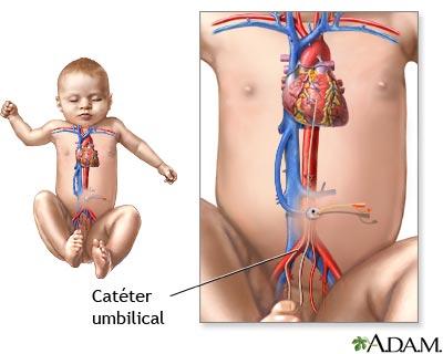Catéter umbilical