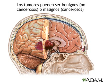 que es un tumor cerebral informacion + video