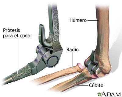 Prótesis para el codo