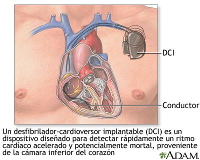 Desfibrilador-cardioversor implantable