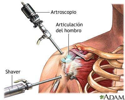 Artroscopia del hombro