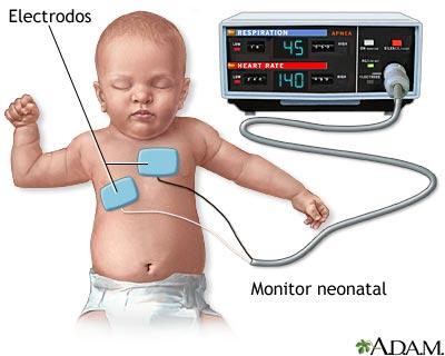 Monitor cardíaco-respiratorio