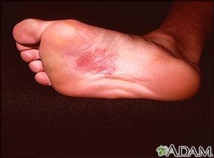 Dermatitis en la planta del pie por níquel