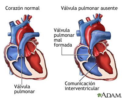 Ausencia de la válvula pulmonar: MedlinePlus enciclopedia médica