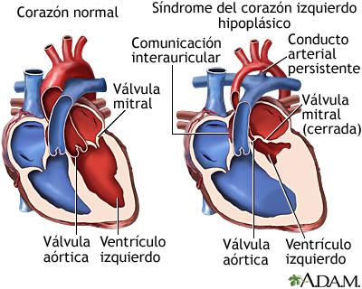 Síndrome del corazón izquierdo hipoplásico