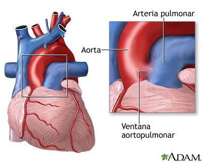 Ventana aortopulmonar