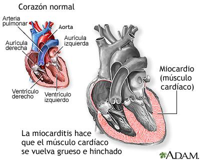 Miocarditis: MedlinePlus enciclopedia médica
