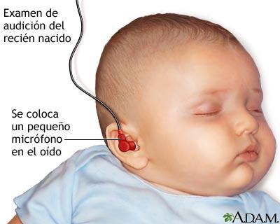 Examen de audición