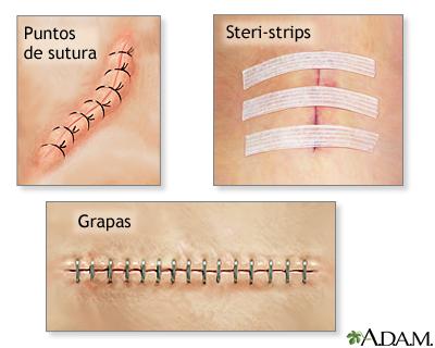 Aid band healing scar strip