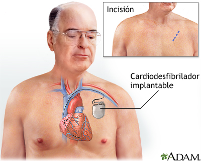 Cardiodesfibrilador implantable