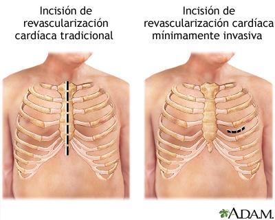 Incisión de cirugía de revascularización cardíaca