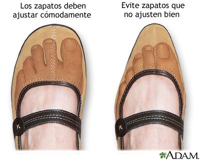 Zapato de ajuste apropiado