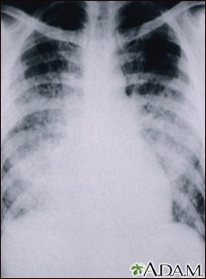 Pulmonía aguda por varicela - Rayos X de tórax