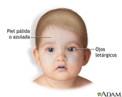 Síntomas del bebé sacudido