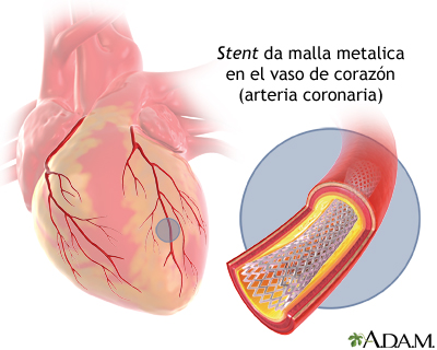 Stent de arteria coronaria