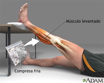 Tratamiento para distensión de la rodilla