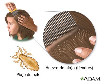 Como influye botoks sobre la caída de los cabello