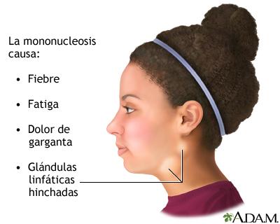 La neuralgia intercostal del departamento de pecho a la derecha