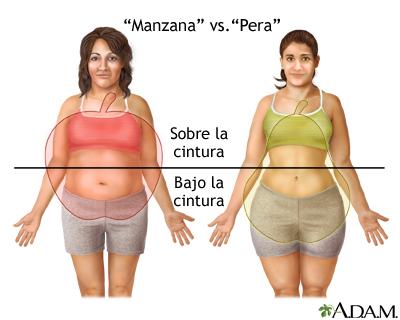 Distintos tipos de aumento de peso