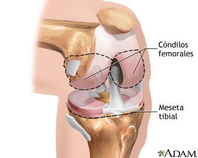 Serie sobre artroplastia de rodilla—Anatomía normal: MedlinePlus ...