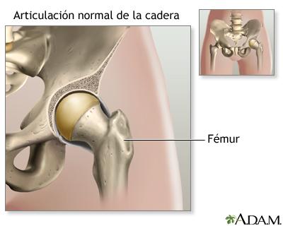Serie sobre artroplastia de cadera—Anatomía normal: MedlinePlus ...