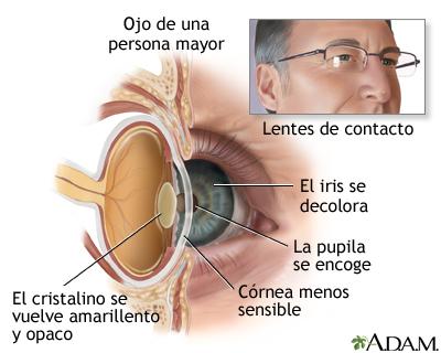 Anatomía de un ojo envejecido