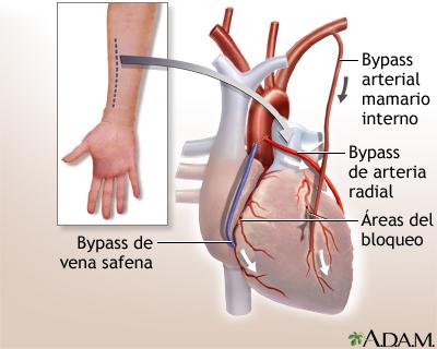 Cirugía de derivación cardíaca - Serie—Procedimiento (tercera parte ...
