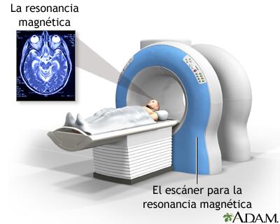 Resonancia magnética de la cabeza