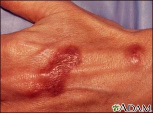 Infección por Mycobacterium marinum en la mano