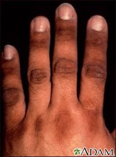 Acantosis nigricans de la mano