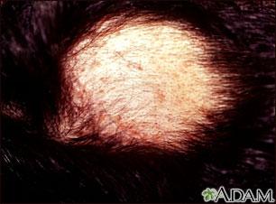 Alopecia areata con pústulas