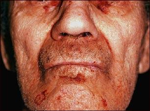 Amiloidosis en la cara