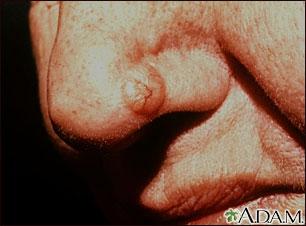 Cáncer de piel o carcinoma de célula basal en la nariz