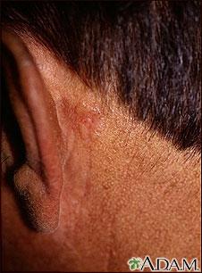 Cáncer de piel o carcinoma de célula basal detrás de la oreja